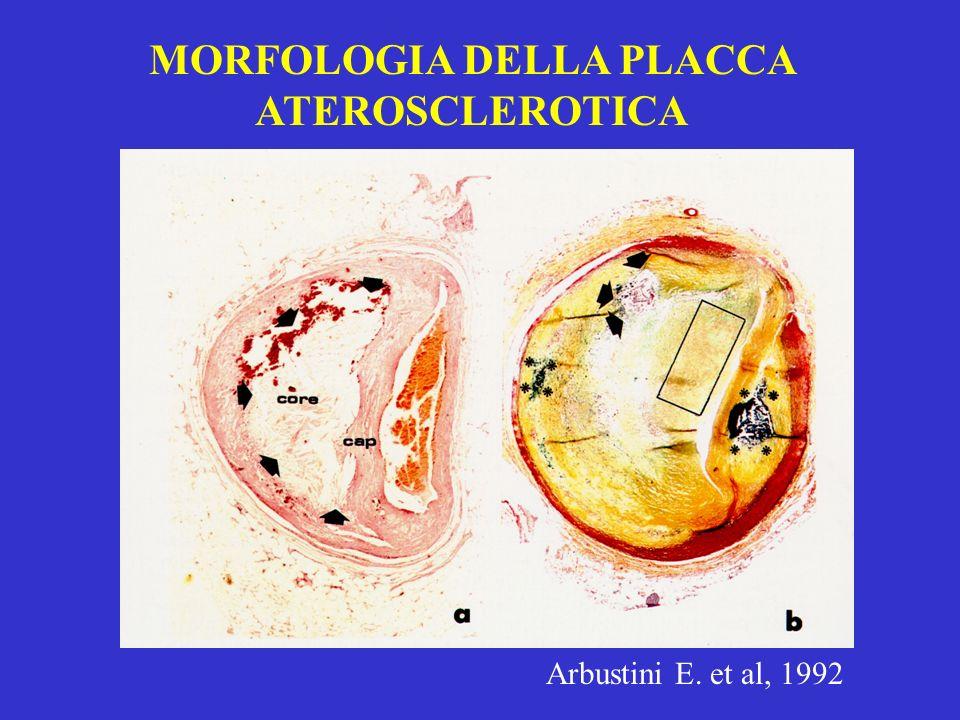 Arbustini E. et al, 1992 MORFOLOGIA DELLA PLACCA ATEROSCLEROTICA