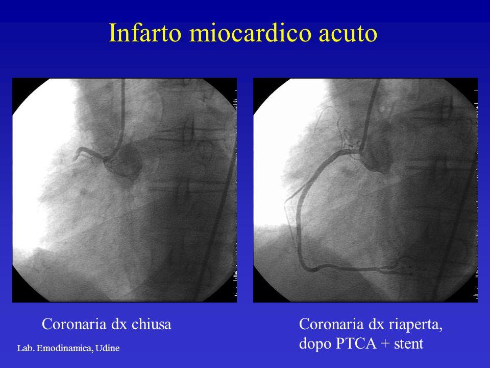 Infarto miocardico acuto Lab. Emodinamica, Udine Coronaria dx chiusaCoronaria dx riaperta, dopo PTCA + stent