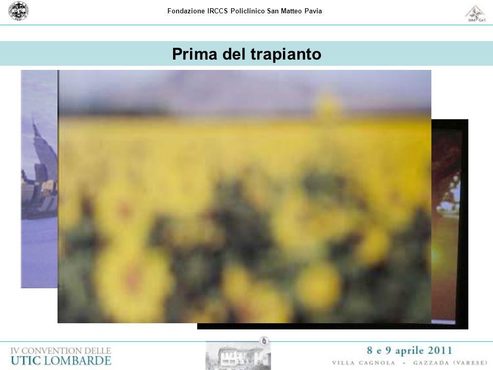 Fondazione IRCCS Policlinico San Matteo Pavia Prima del trapianto