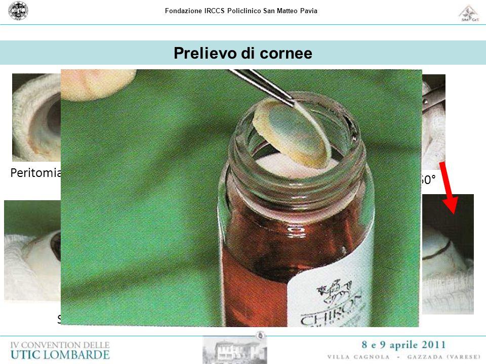 Fondazione IRCCS Policlinico San Matteo Pavia Prelievo di cornee Peritomia congiuntivaleIncisione della sclera Sclerotomia su 360° Separazione dalle s