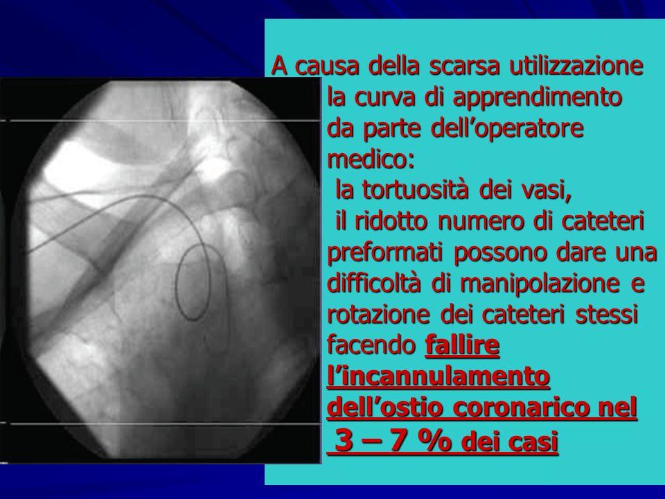 A causa della scarsa utilizzazione la curva di apprendimento da parte delloperatore medico: la tortuosità dei vasi, il ridotto numero di cateteri pref