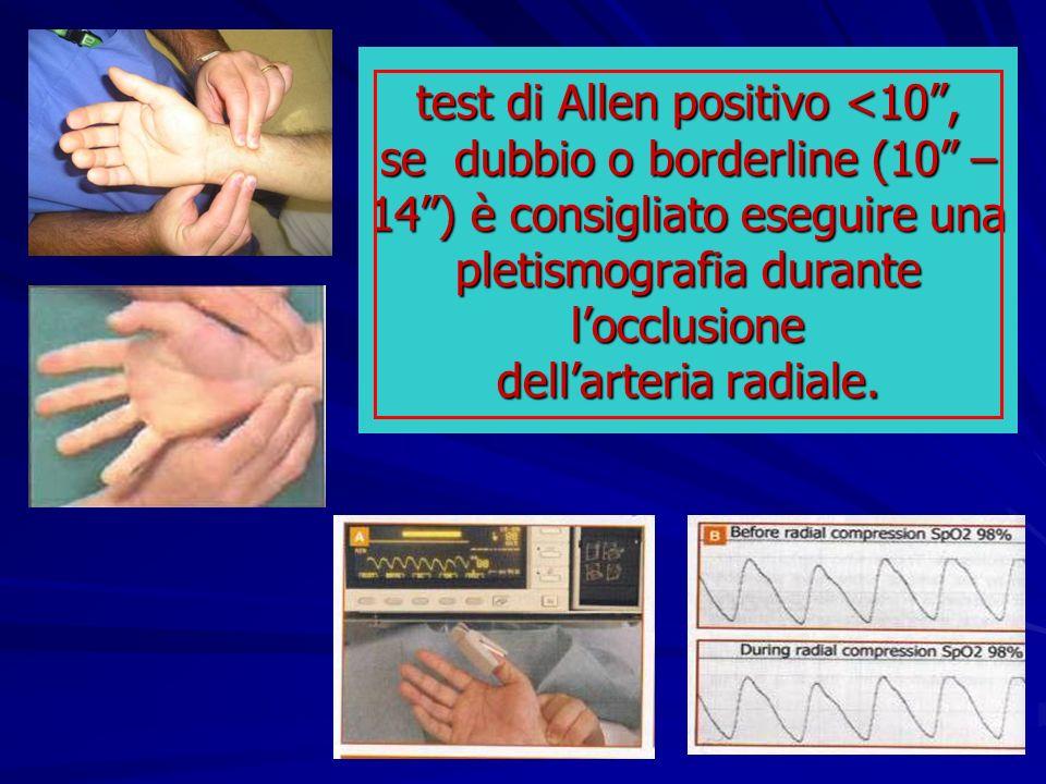 test di Allen positivo <10, se dubbio o borderline (10 – 14) è consigliato eseguire una pletismografia durante locclusione dellarteria radiale.