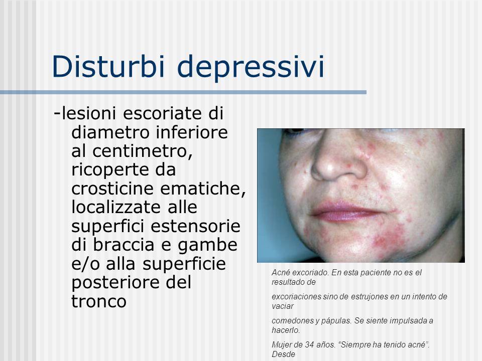 Disturbi depressivi Il quadro clinico: -papule pruriginose localizzate in modo simmetrico alle zone laterali del volto (acne escoriata) Ragazza di 23