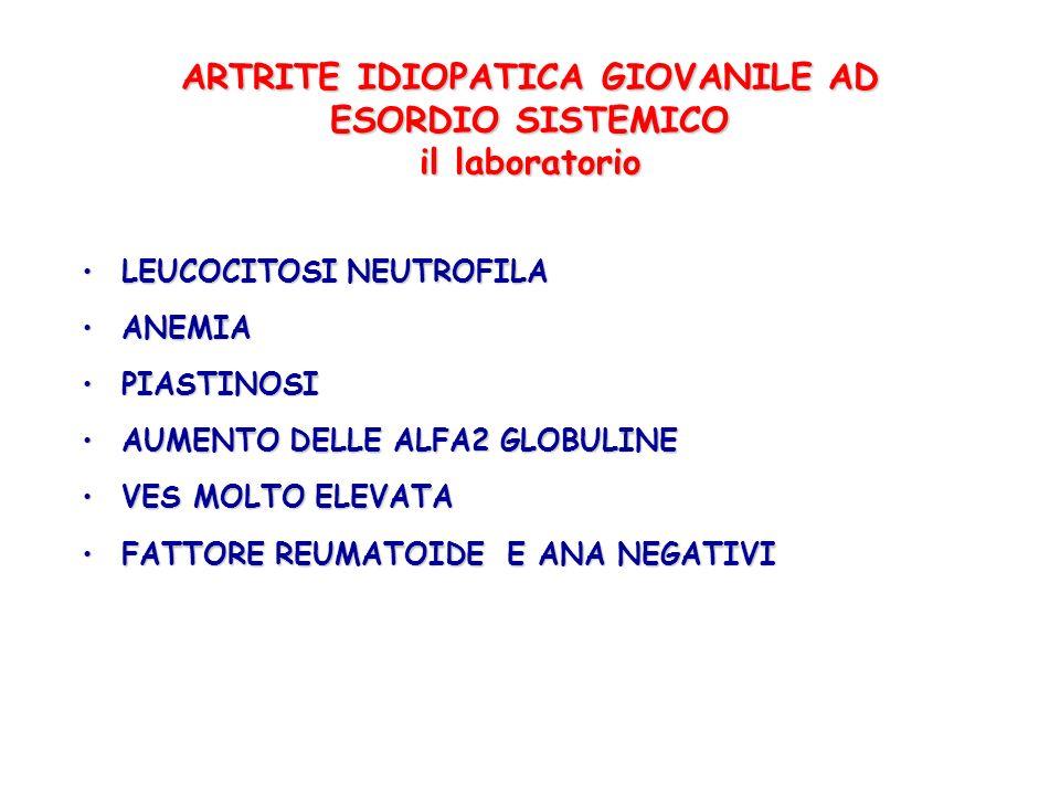 ARTRITE IDIOPATICA GIOVANILE AD ESORDIO SISTEMICO il laboratorio LEUCOCITOSI NEUTROFILALEUCOCITOSI NEUTROFILA ANEMIAANEMIA PIASTINOSIPIASTINOSI AUMENT
