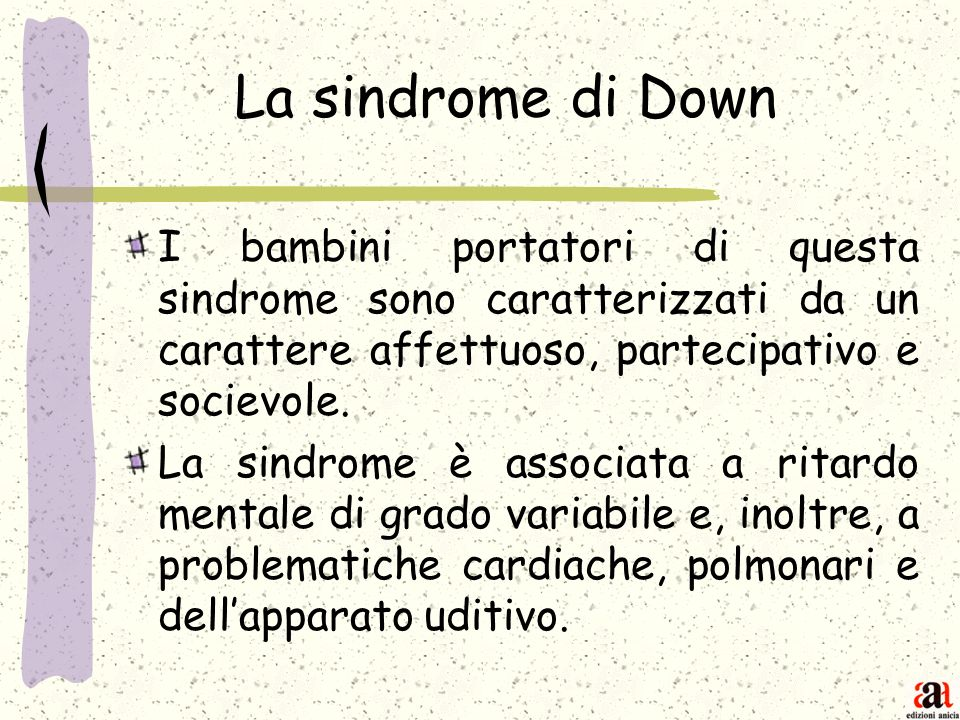 La sindrome di Down I bambini portatori di questa sindrome sono caratterizzati da un carattere affettuoso, partecipativo e socievole. La sindrome è as