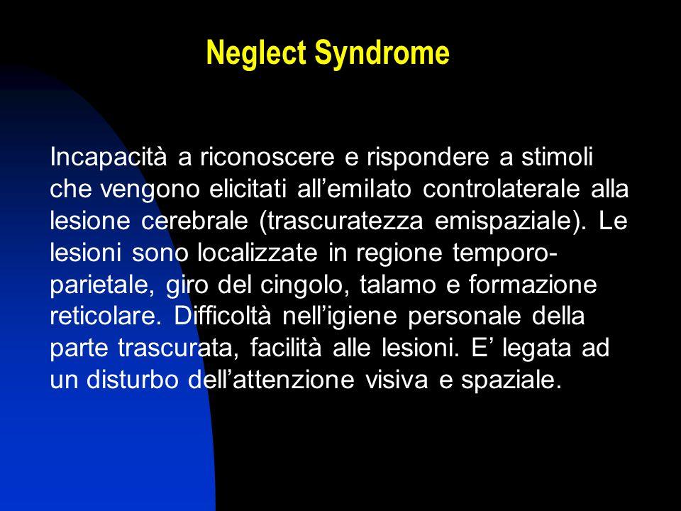 Neglect Syndrome Incapacità a riconoscere e rispondere a stimoli che vengono elicitati allemilato controlaterale alla lesione cerebrale (trascuratezza