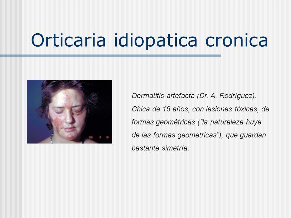 Orticaria idiopatica cronica Dermatitis artefacta (Dr. A. Rodríguez). Mujer de 60 años. Faenas domésticas. Lesiones que se van repitiendo desde hace u