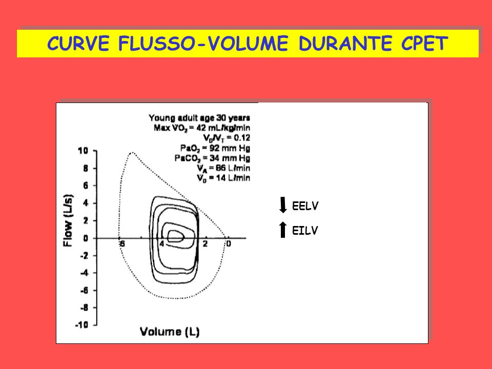 CURVE FLUSSO-VOLUME DURANTE CPET EELV EILV