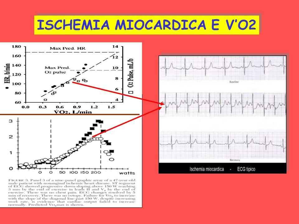 ISCHEMIA MIOCARDICA E VO2