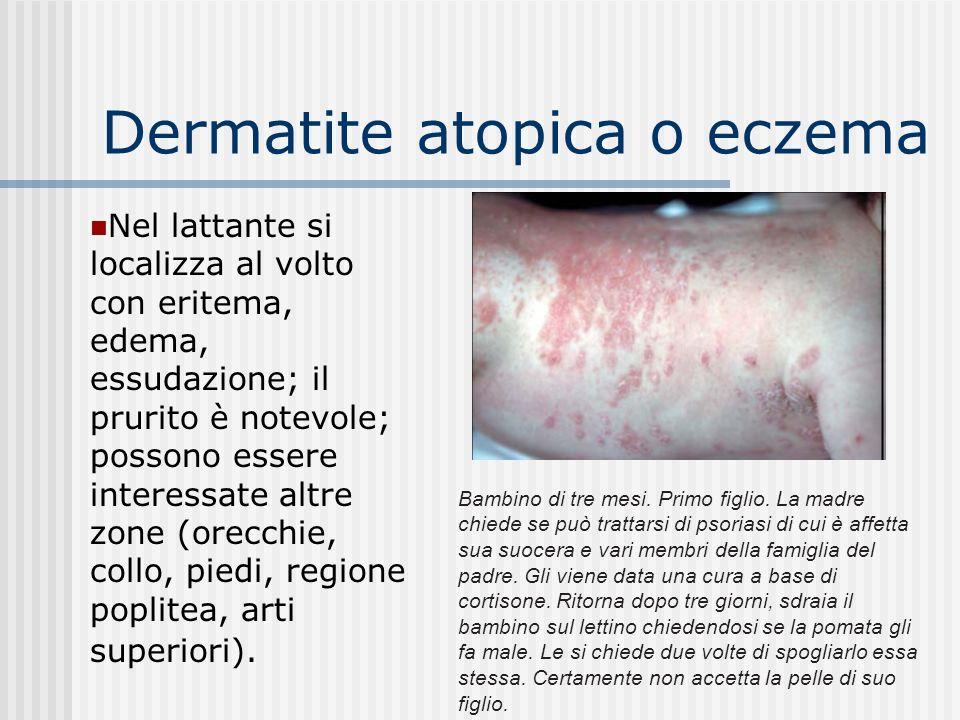 Dermatite atopica o eczema Per atopia s intende una forte reattività nei confronti di agenti normalmente innocui (allergeni).