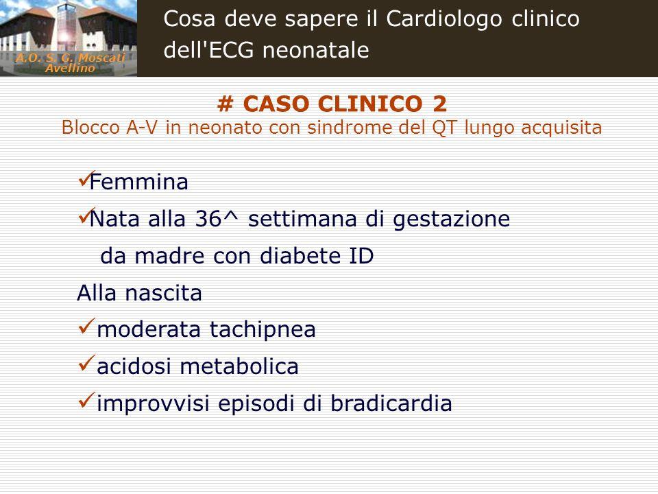 A.O. S. G. Moscati Avellino Cosa deve sapere il Cardiologo clinico dell'ECG neonatale # CASO CLINICO 2 Blocco A-V in neonato con sindrome del QT lungo