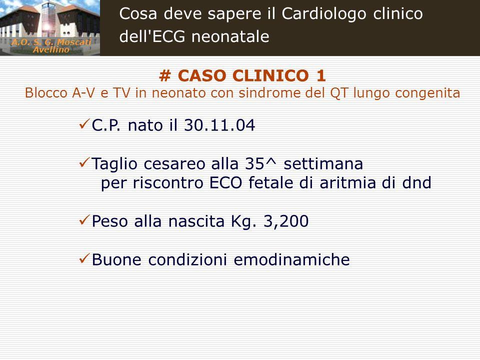 A.O. S. G. Moscati Avellino Cosa deve sapere il Cardiologo clinico dell'ECG neonatale C.P. nato il 30.11.04 Taglio cesareo alla 35^ settimana per risc
