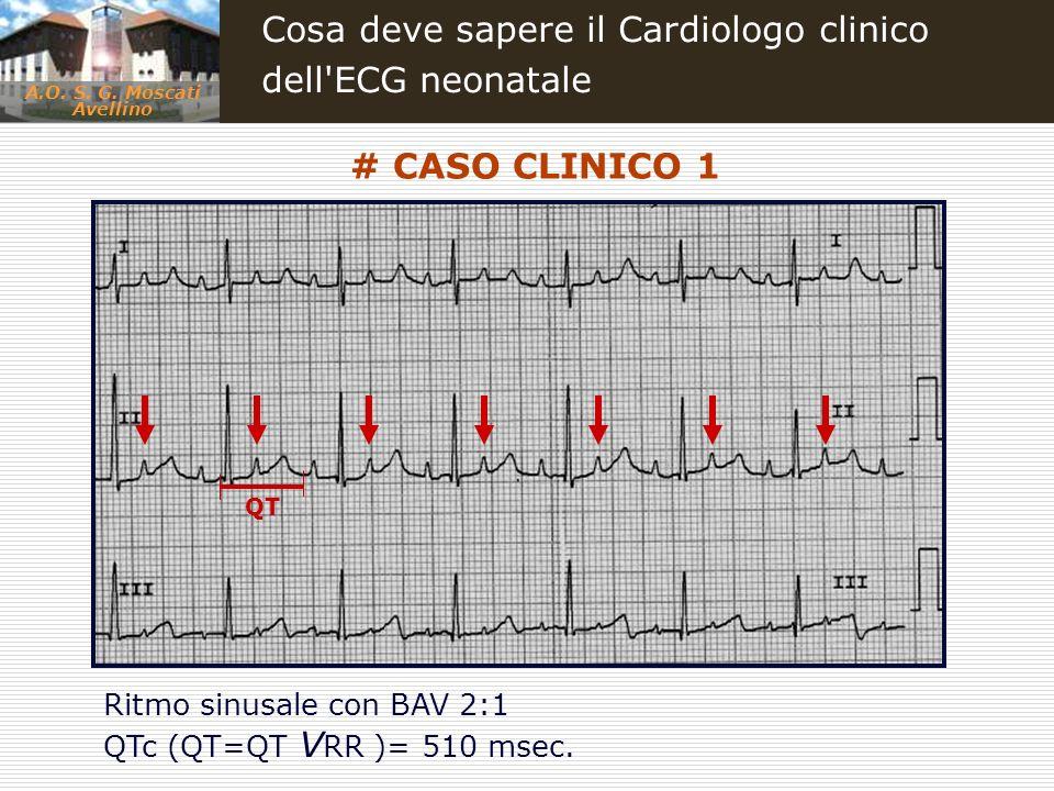 A.O. S. G. Moscati Avellino Cosa deve sapere il Cardiologo clinico dell'ECG neonatale # CASO CLINICO 1 QT Ritmo sinusale con BAV 2:1 QTc (QT=QT V RR )