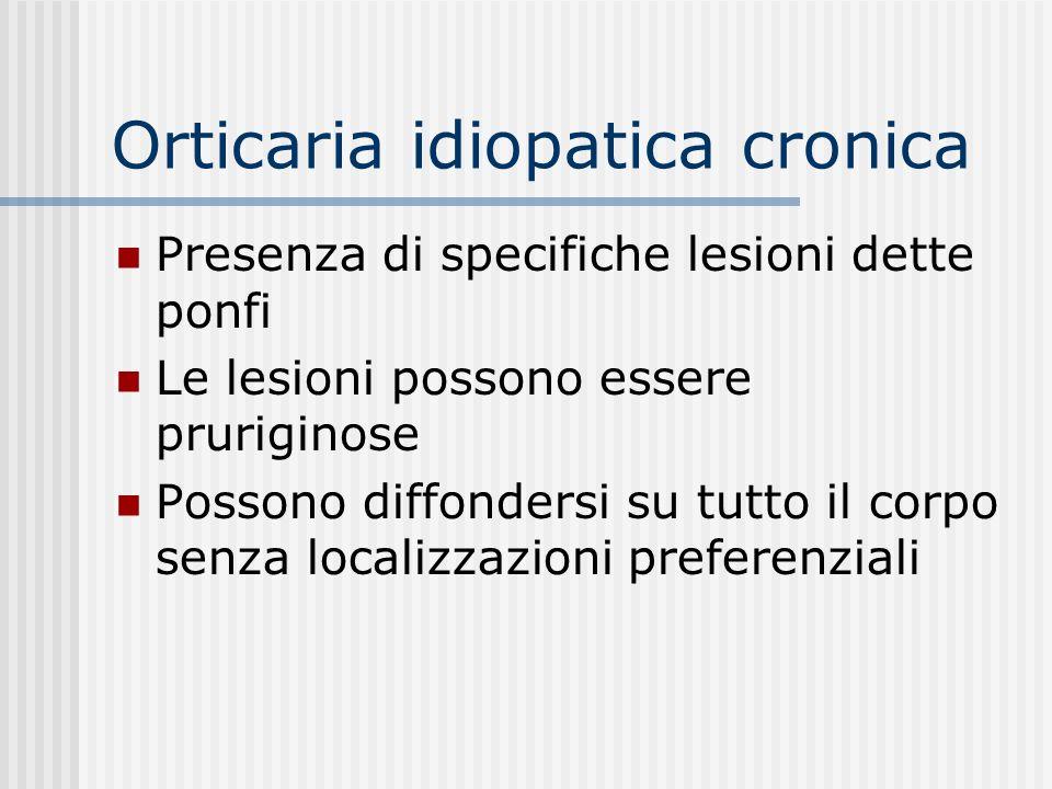 Orticaria idiopatica cronica Langioedema si definisce come un rigonfiamento diffuso del tessuto sottocutaneo lasso, nel dorso delle mani e dei piedi,