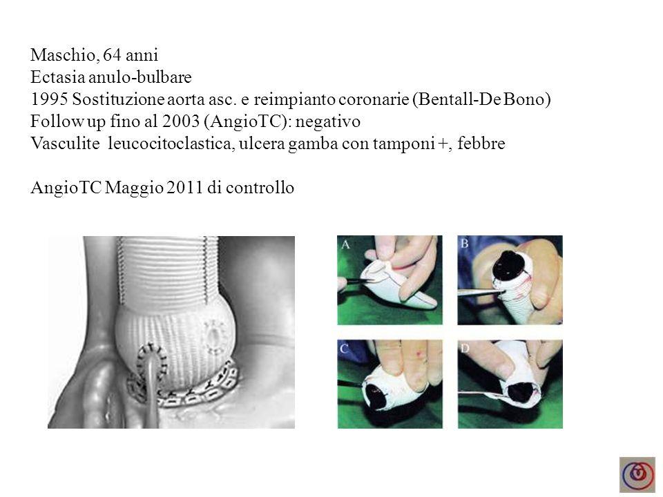 Maschio, 64 anni Ectasia anulo-bulbare 1995 Sostituzione aorta asc. e reimpianto coronarie (Bentall-De Bono) Follow up fino al 2003 (AngioTC): negativ