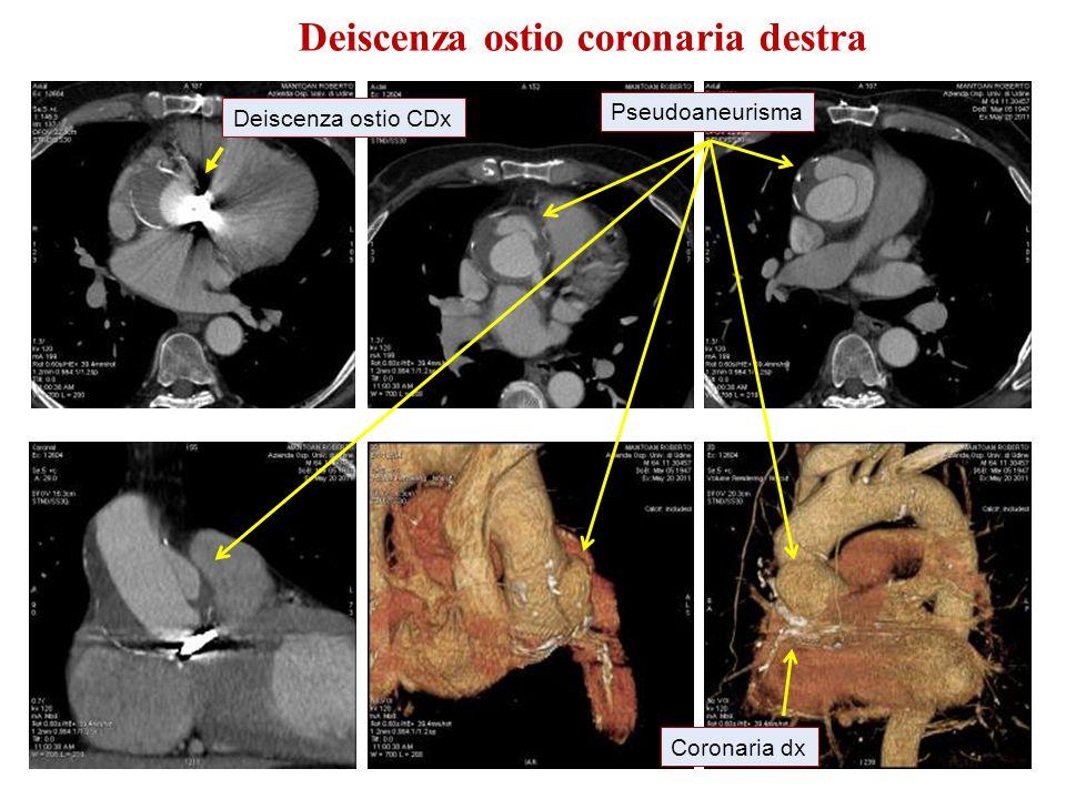 Deiscenza ostio coronaria destra Deiscenza ostio CDx Pseudoaneurisma Coronaria dx