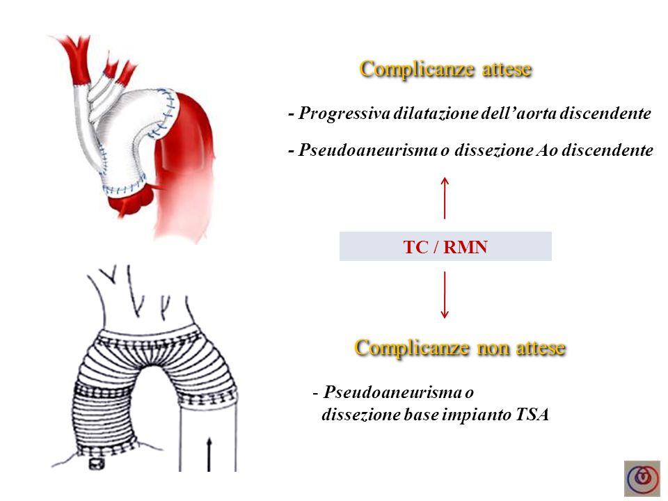 Complicanze attese - Progressiva dilatazione dellaorta discendente - Pseudoaneurisma o dissezione base impianto TSA Complicanze non attese TC / RMN -