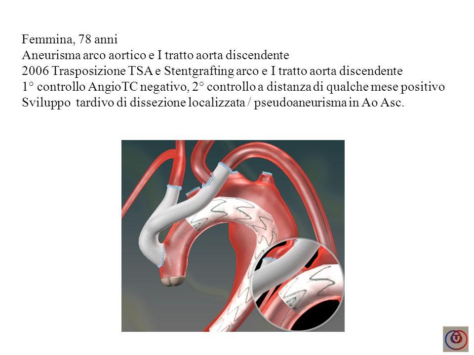 Femmina, 78 anni Aneurisma arco aortico e I tratto aorta discendente 2006 Trasposizione TSA e Stentgrafting arco e I tratto aorta discendente 1° contr