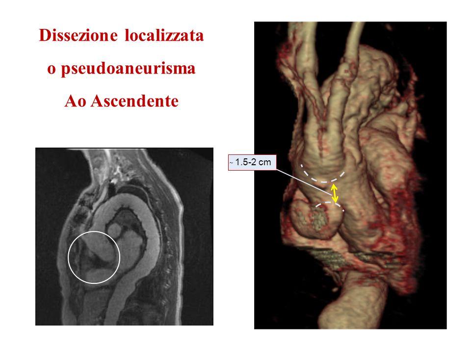 Dissezione localizzata o pseudoaneurisma Ao Ascendente ̴ 1.5-2 cm