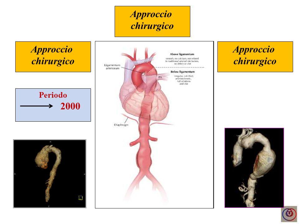 Approccio chirurgico vs Approccio ibrido Approccio chirurgico Approccio endovsc.