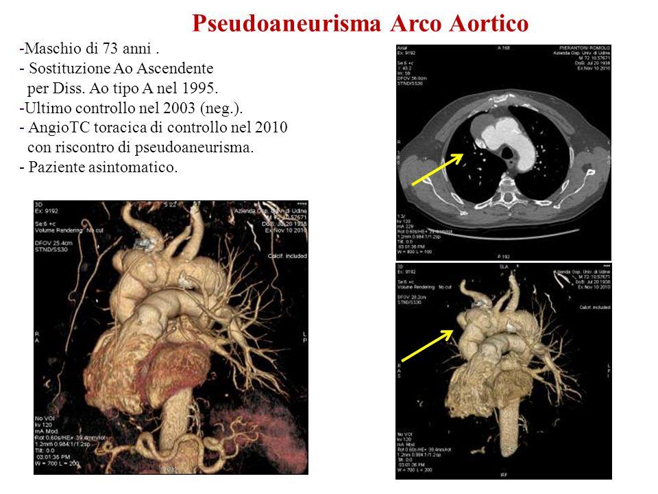 Pseudoaneurisma Arco Aortico -Maschio di 73 anni. - Sostituzione Ao Ascendente per Diss. Ao tipo A nel 1995. -Ultimo controllo nel 2003 (neg.). - Angi