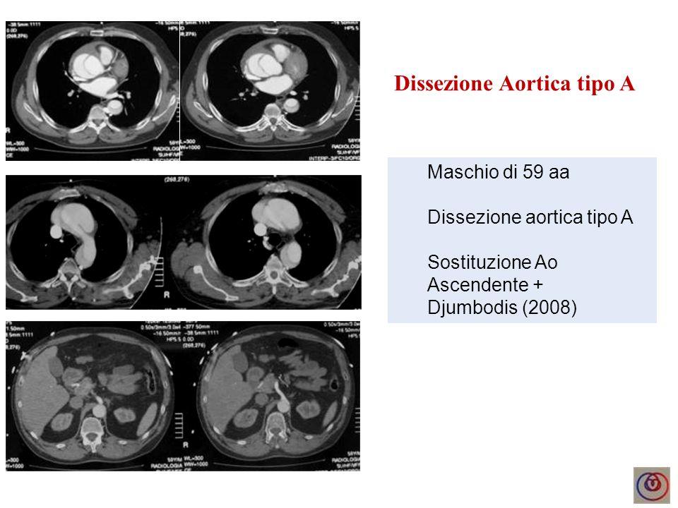 Dissezione Aortica tipo A Maschio di 59 aa Dissezione aortica tipo A Sostituzione Ao Ascendente + Djumbodis (2008)
