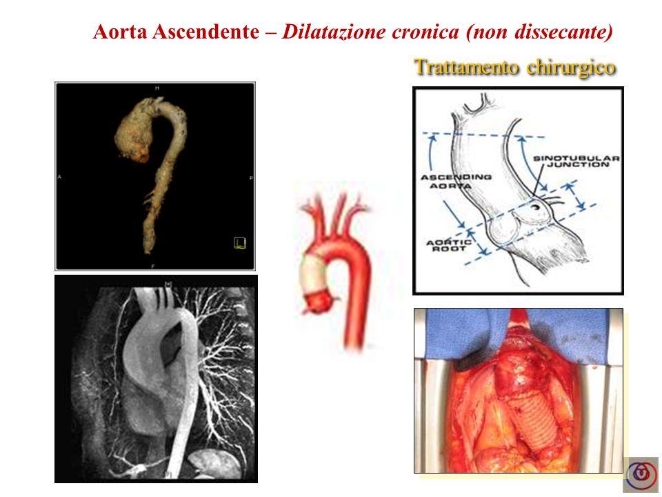 Complicanze attese - Progressiva dilatazione del bulbo e dellarco aortico - Pseudoaneurisma o dissezione localizzata del bulbo - Pseudoaneurisma o dissezione dellarco aortico (Ao toracica) Aorta Ascendente EcocardiografiaTC / RMN Evoluzione cronica Evoluzione acuta/subacuta Complicanze non attese