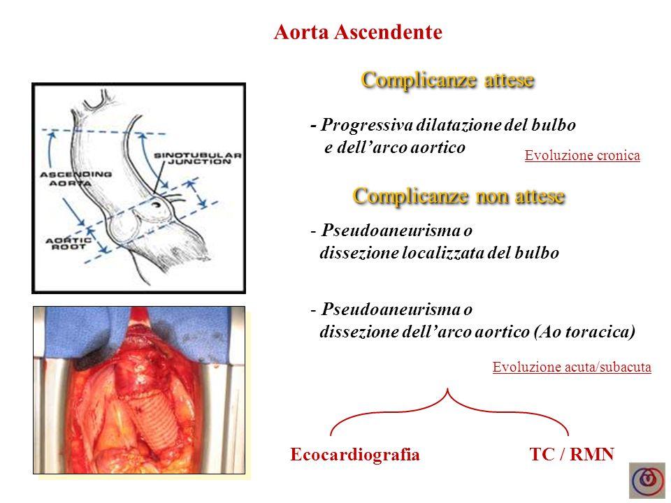 Complicanze attese - Progressiva dilatazione dellaorta discendente - Pseudoaneurisma o dissezione base impianto TSA Complicanze non attese TC / RMN - Pseudoaneurisma o dissezione Ao discendente