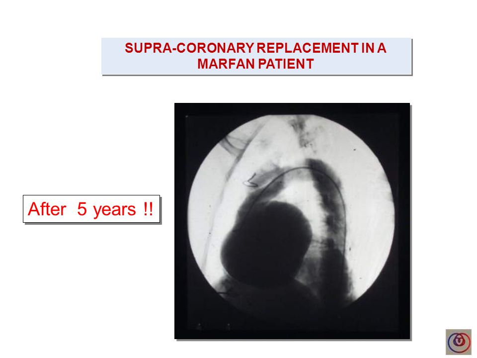 SUPRA-CORONARY REPLACEMENT IN A MARFAN PATIENT After 5 years !!