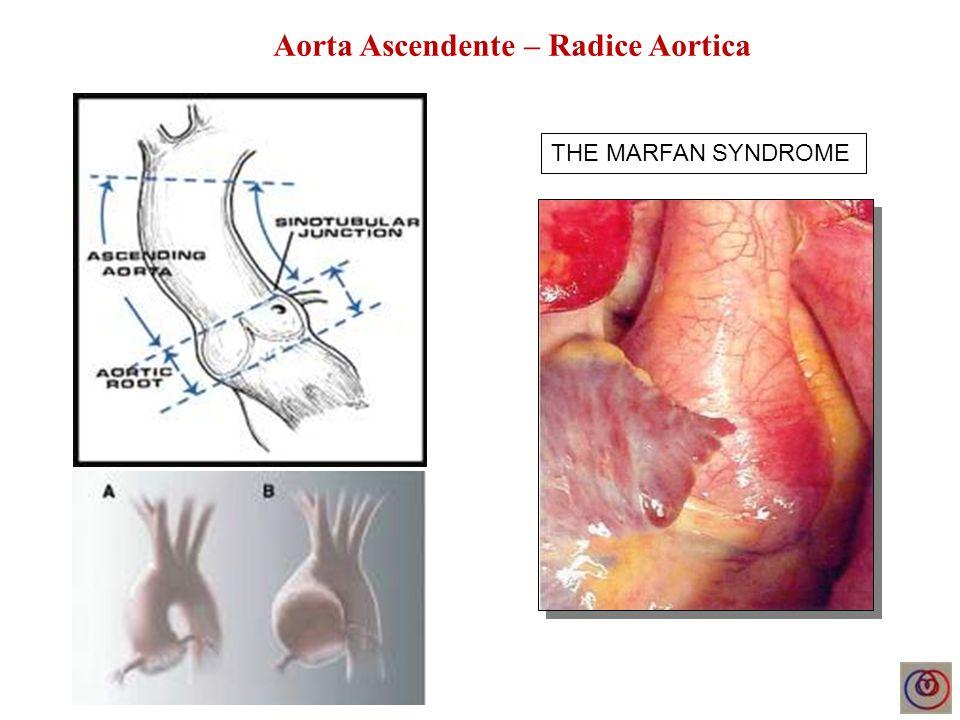 RETROGRADE DISSECTION AFTER EVAR ACUTE TYPE B DISSECTION Maschio, 61 anni Dissezione aortica tipo B Endostent in Aorta discendente Dissezione retrograda Aorta ascendente