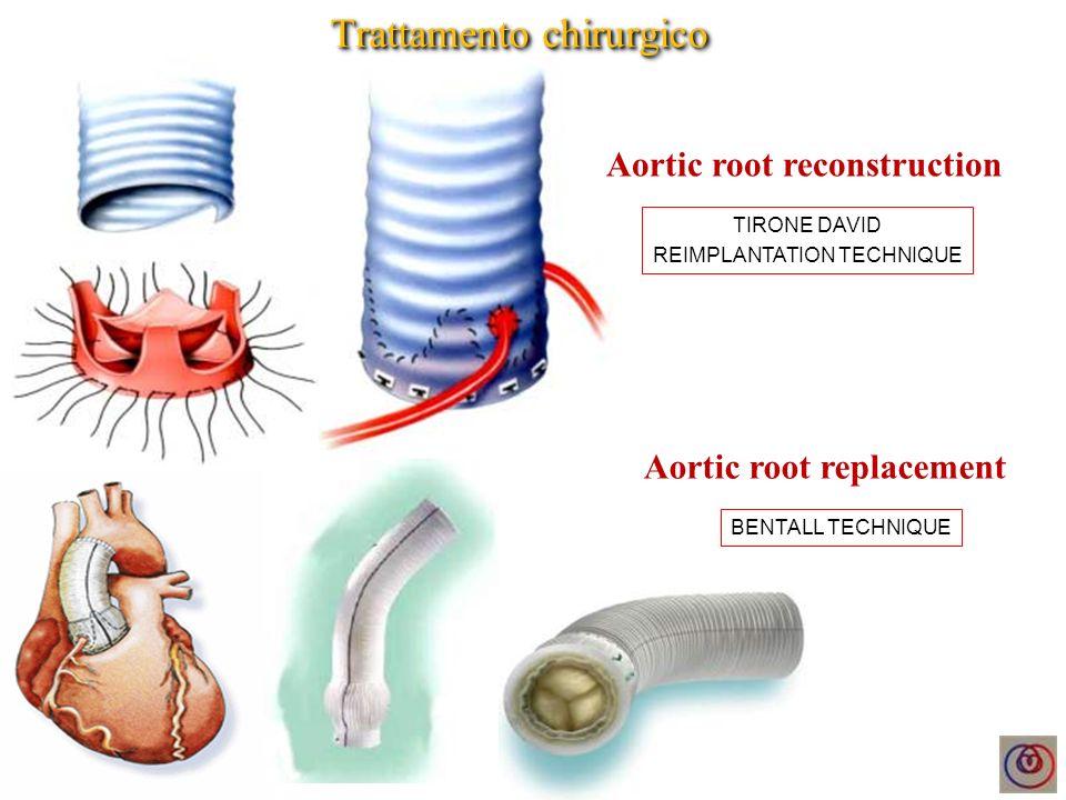 Complicanze attese - Progressiva dilatazione dellarco aortico - Pseudoaneurisma o dissezione dellarco aortico (Ao toracica) - Ectasia degli osti coronarici (progressione patologia di base) Complicanze non attese - Deiscenza degli osti coronarici (processi infettivi, traumatici) EcocardioTC / RMN