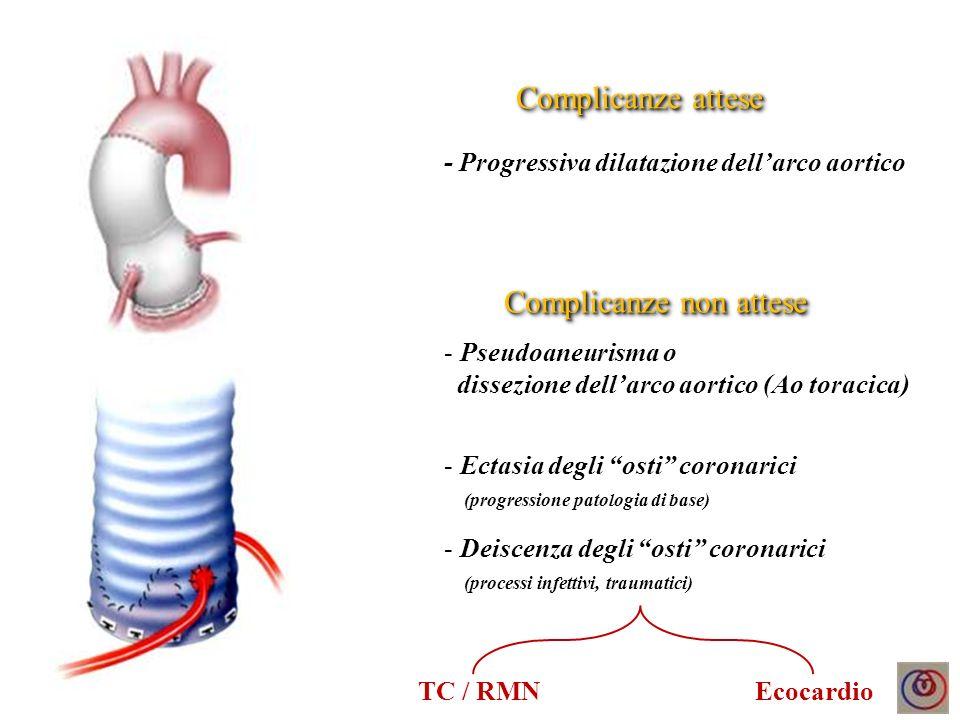 Dissezione aortica tipo A Surgical repair Complicanze attese - Espansione del falso lume - Collasso vero lume con malperfusione dorgano - Pseudoaneurisma tardivo (sede di anastomosi) Complicanze non attese