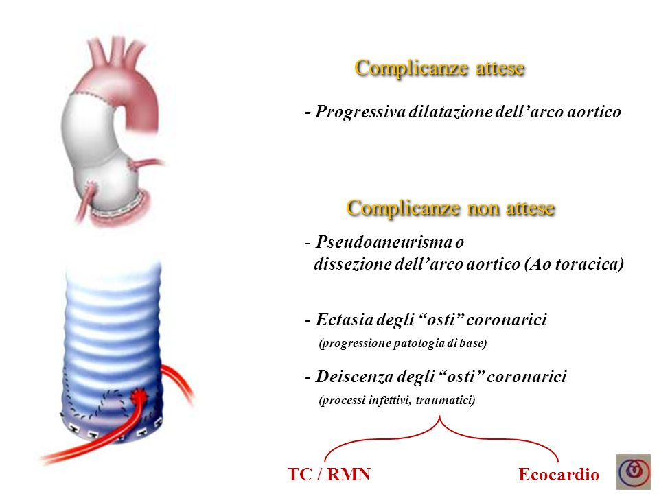 Maschio, 64 anni Ectasia anulo-bulbare 1995 Sostituzione aorta asc.