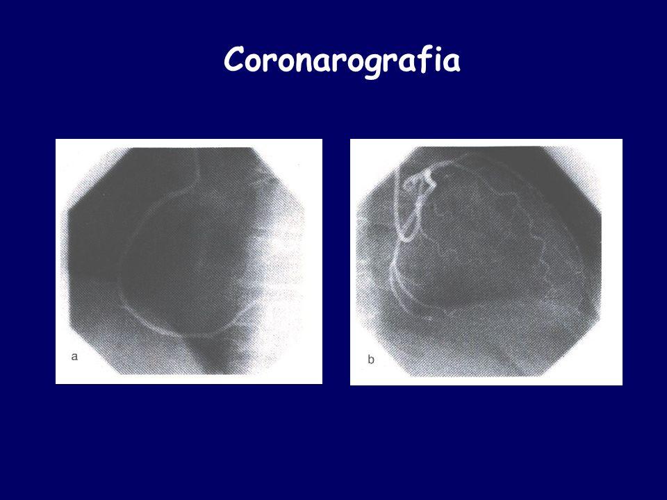 Coronarografia
