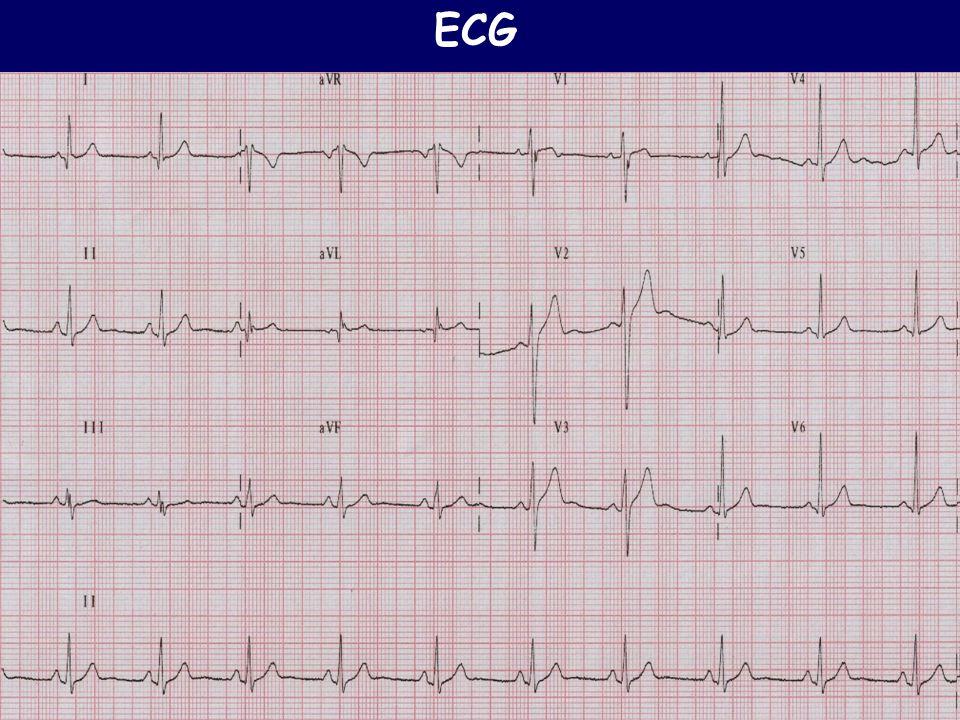 INDAGINI STRUMENTALI C.Rapezzi Una nuova metodica diagnostica in Cardiologia: l ECG La Cardiologia nella Pratica Clinica,1999