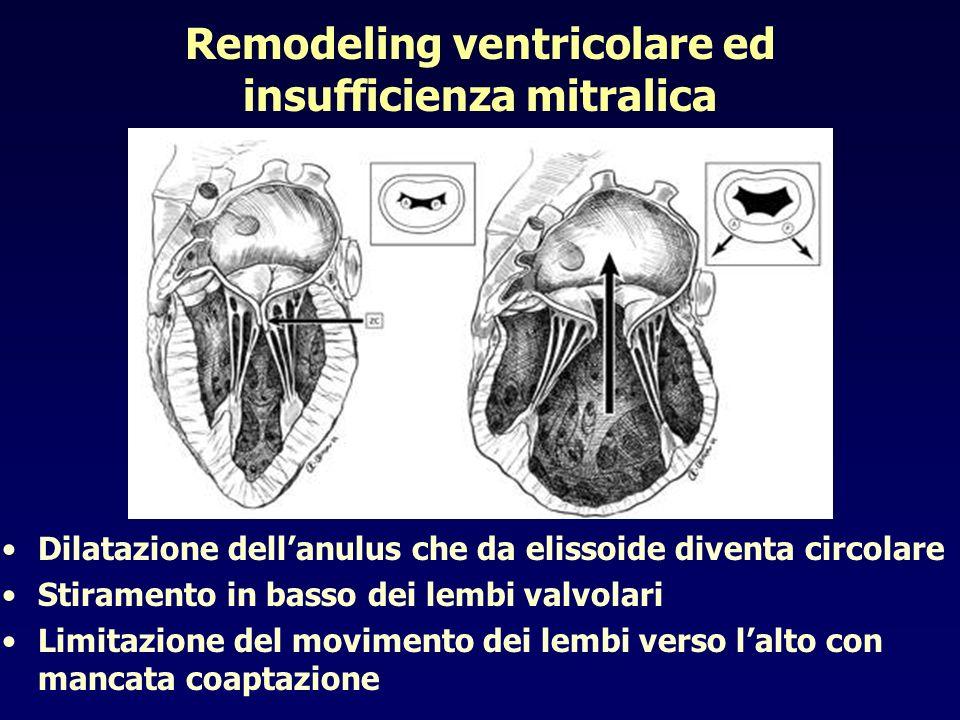 Remodeling ventricolare ed insufficienza mitralica Dilatazione dellanulus che da elissoide diventa circolare Stiramento in basso dei lembi valvolari L