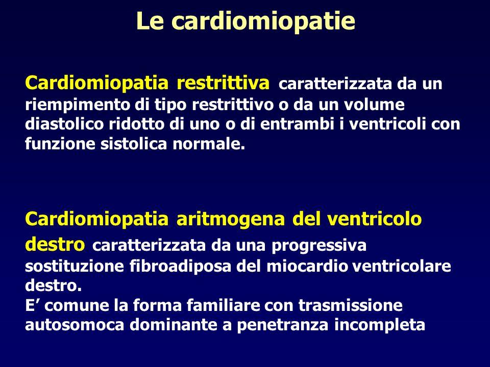 Le cardiomiopatie Cardiomiopatia restrittiva caratterizzata da un riempimento di tipo restrittivo o da un volume diastolico ridotto di uno o di entram