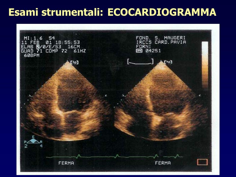 Esami strumentali: ECOCARDIOGRAMMA Funzione ventricolare destra