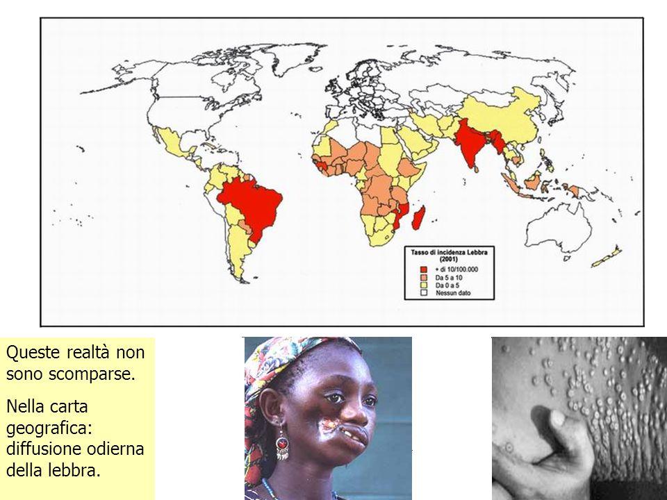 Queste realtà non sono scomparse. Nella carta geografica: diffusione odierna della lebbra. lllllllll