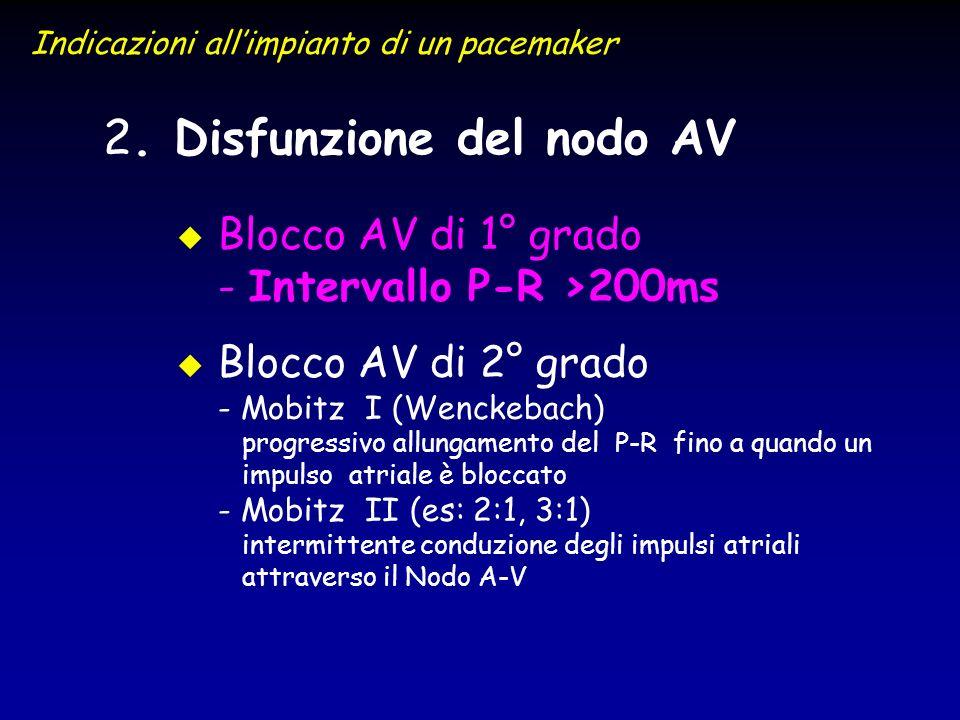 2 2. Disfunzione del nodo AV u u Blocco AV di 1° grado - Intervallo P-R >200ms u u Blocco AV di 2° grado - Mobitz I (Wenckebach) progressivo allungame
