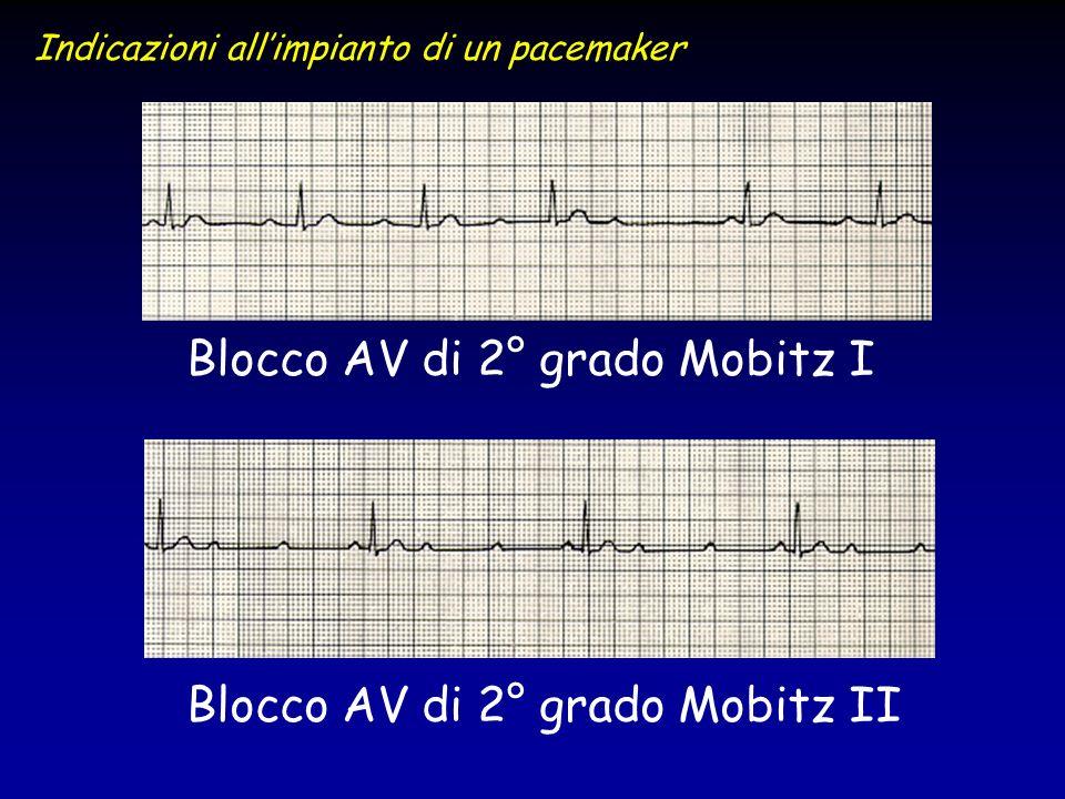 Blocco AV di 2° grado Mobitz I Blocco AV di 2° grado Mobitz II Indicazioni allimpianto di un pacemaker