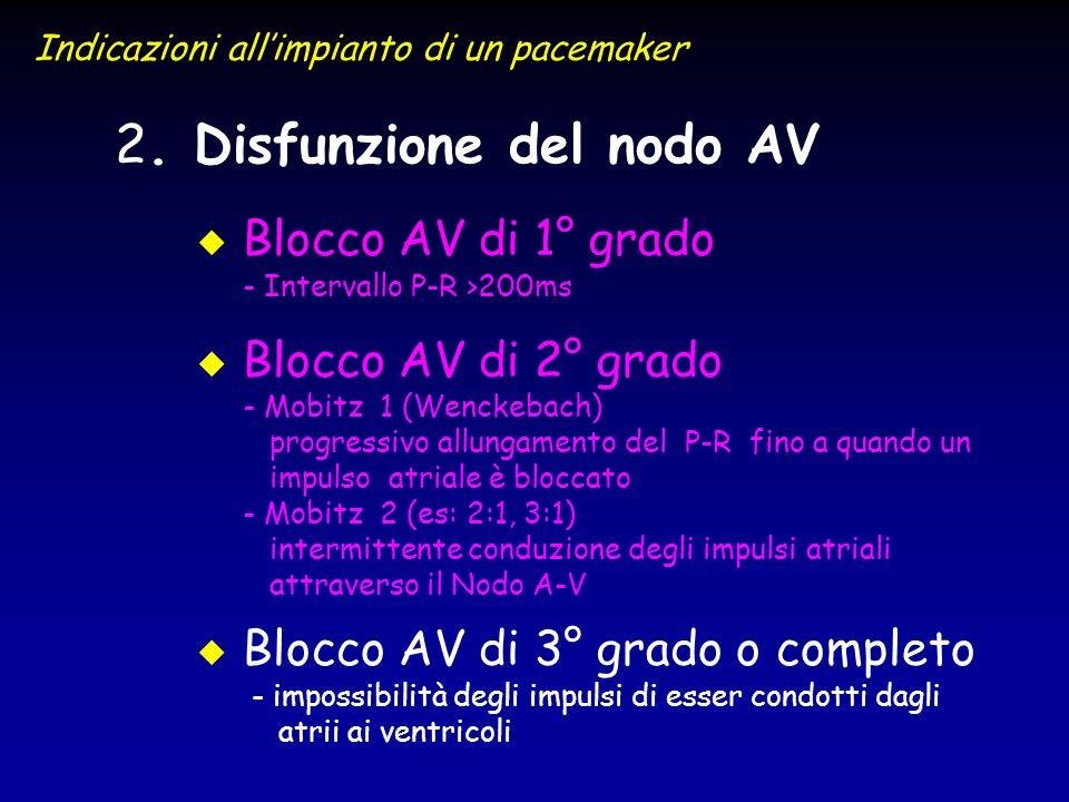 2 2. Disfunzione del nodo AV u u Blocco AV di 1° grado - Intervallo P-R >200ms u u Blocco AV di 2° grado - Mobitz 1 (Wenckebach) progressivo allungame