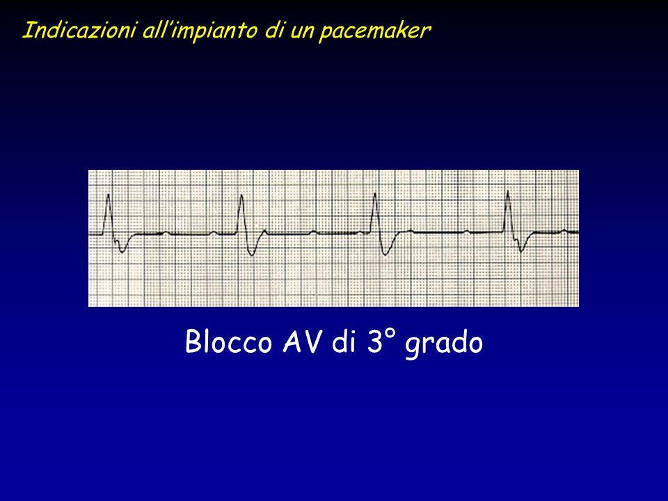 Blocco AV di 3° grado Indicazioni allimpianto di un pacemaker