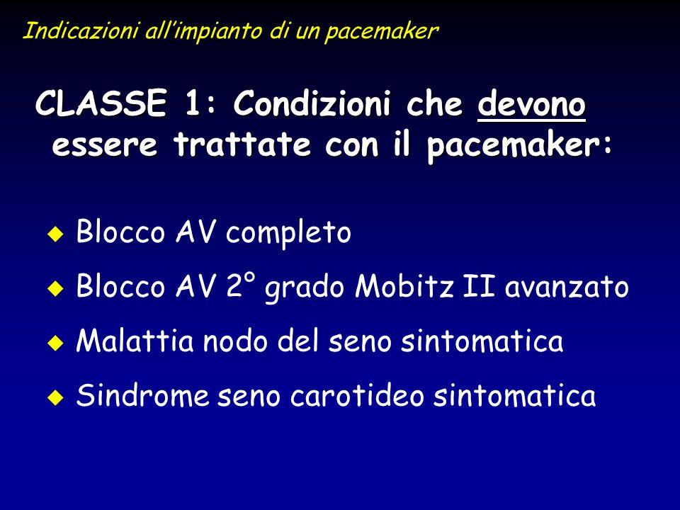 CLASSE 1: Condizioni che devono essere trattate con il pacemaker: u u Blocco AV completo u u Blocco AV 2° grado Mobitz II avanzato u u Malattia nodo d