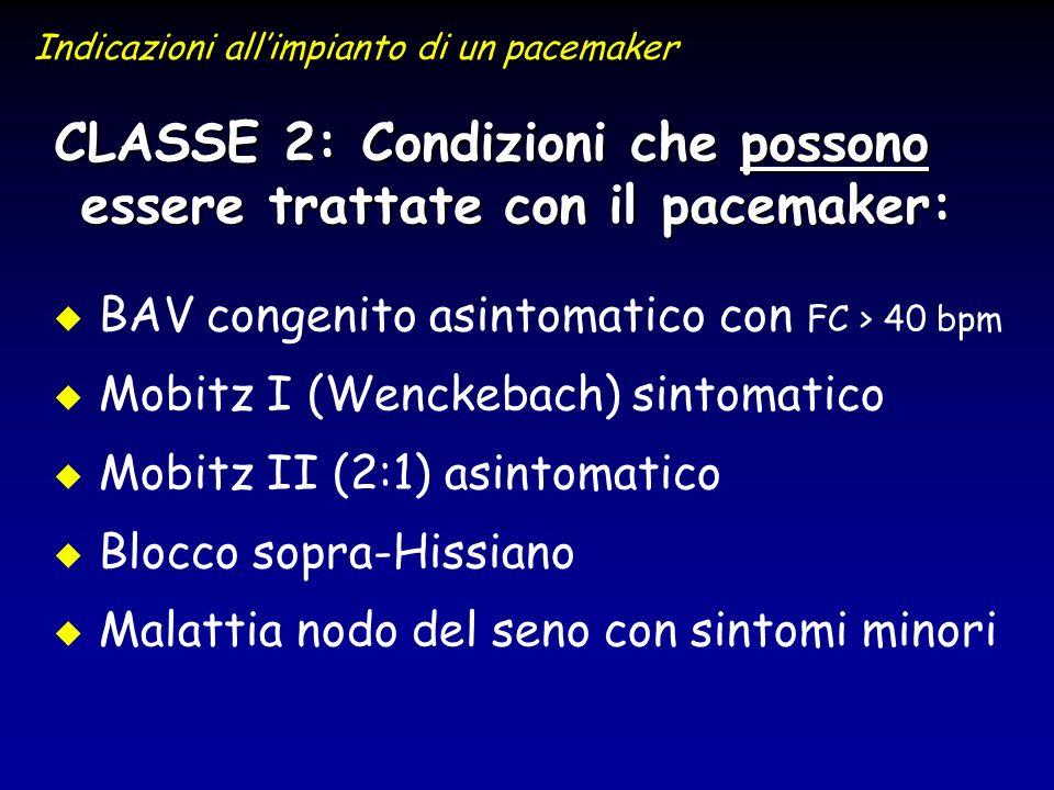 u u BAV congenito asintomatico con FC > 40 bpm u u Mobitz I (Wenckebach) sintomatico u u Mobitz II (2:1) asintomatico u u Blocco sopra-Hissiano u u Ma