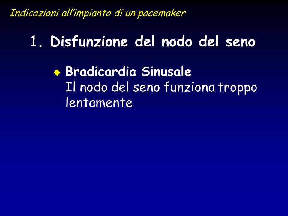 1 1. Disfunzione del nodo del seno Indicazioni allimpianto di un pacemaker u u Bradicardia Sinusale Il nodo del seno funziona troppo lentamente
