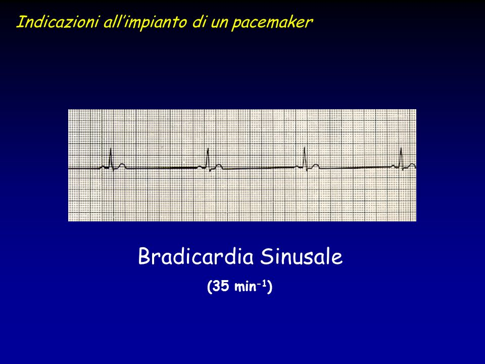 Bradicardia Sinusale (35 min -1 ) Indicazioni allimpianto di un pacemaker