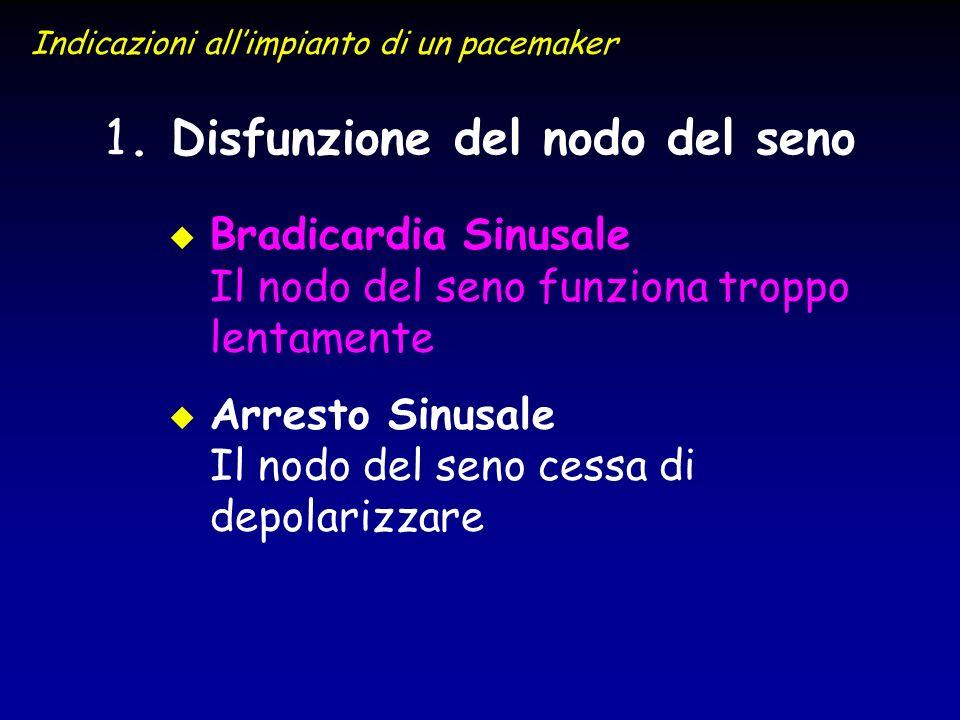 1 1. Disfunzione del nodo del seno u u Bradicardia Sinusale Il nodo del seno funziona troppo lentamente u u Arresto Sinusale Il nodo del seno cessa di