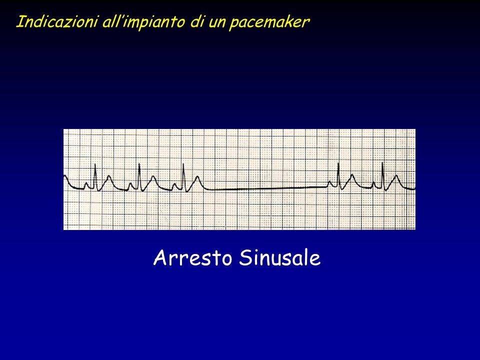 Arresto Sinusale Indicazioni allimpianto di un pacemaker