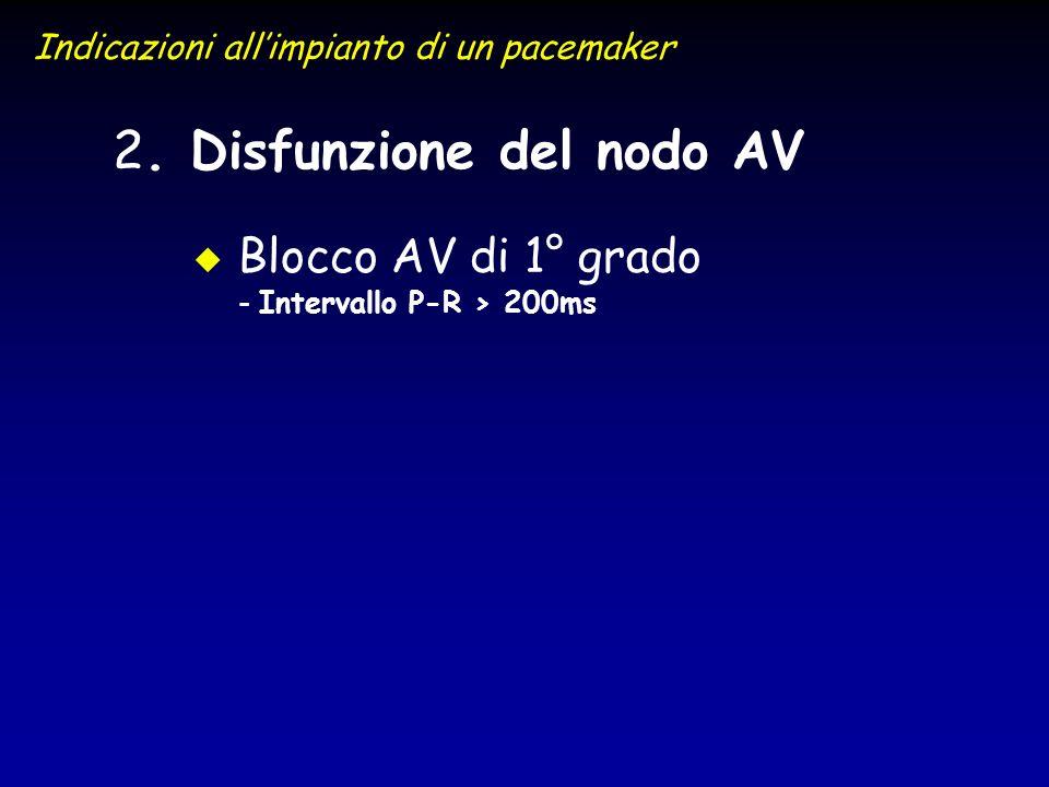 2 2. Disfunzione del nodo AV u u Blocco AV di 1° grado - Intervallo P-R > 200ms Indicazioni allimpianto di un pacemaker